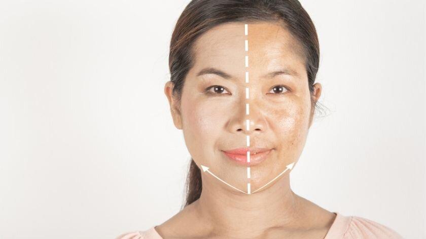 pele do rosto na gravidez (1)