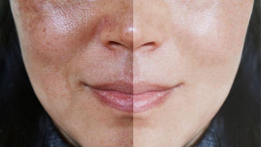 pele do rosto na gravidez (2)